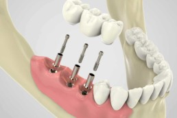 instituto-braga-de-odontologia-e-pesquisa-instituto-ibop-dentistas-curso-carga-imediata-2019
