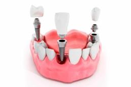 instituto-braga-de-odontologia-e-pesquisa-instituto-ibop-dentistas-cursos-implante-2019