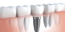 instituto-ibop-institutobraga-odontologia-e-pesquisa-saopaulo-moema-curso-implantodontia-4-certificacoes-2019
