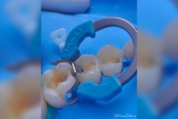 institutoibop-ibop-cursos-odontologia-sao-paulo-blog-Consideracoes-que- determinam-a-selecao-da-tecnica-restauradora-em-dentes-posteriores-dr-eliseo-chun