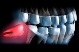 instituto-braga-de-odontologia-e-pesquisa-instituto-ibop-dentistas-curso-buco-maxilo-2019