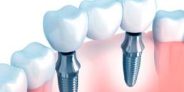 instituto-braga-de-odontologia-e-pesquisa-instituto-ibop-dentistas-curso-protese-sobre-implante-2019